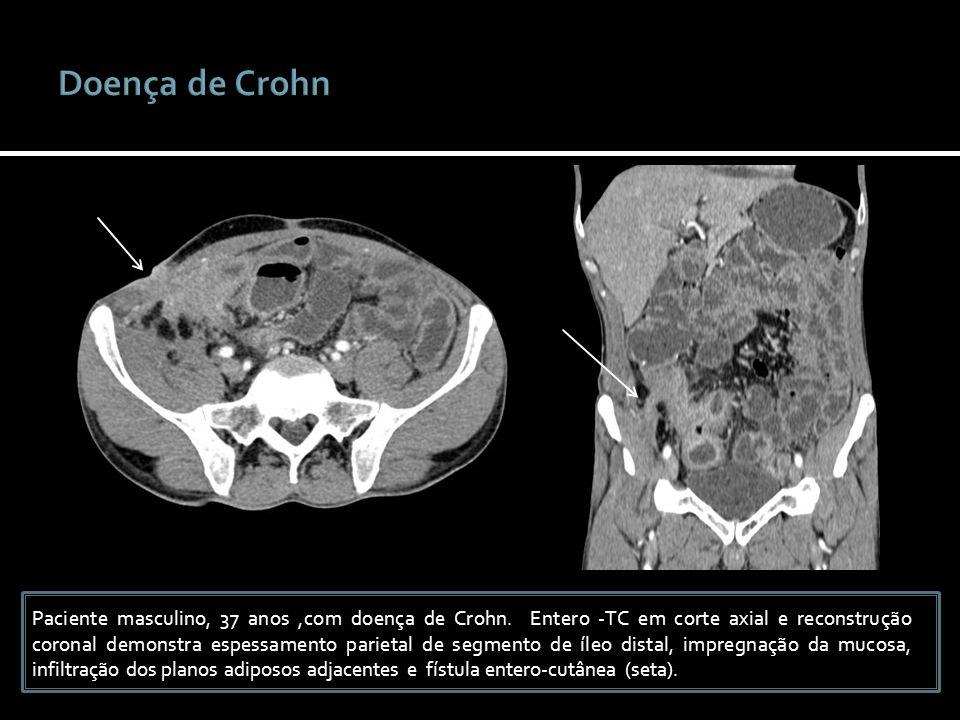 Paciente masculino, 37 anos,com doença de Crohn. Entero -TC em corte axial e reconstrução coronal demonstra espessamento parietal de segmento de íleo