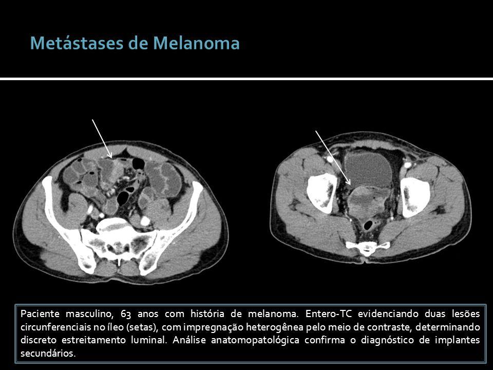 Paciente masculino, 63 anos com história de melanoma. Entero-TC evidenciando duas lesões circunferenciais no íleo (setas), com impregnação heterogênea