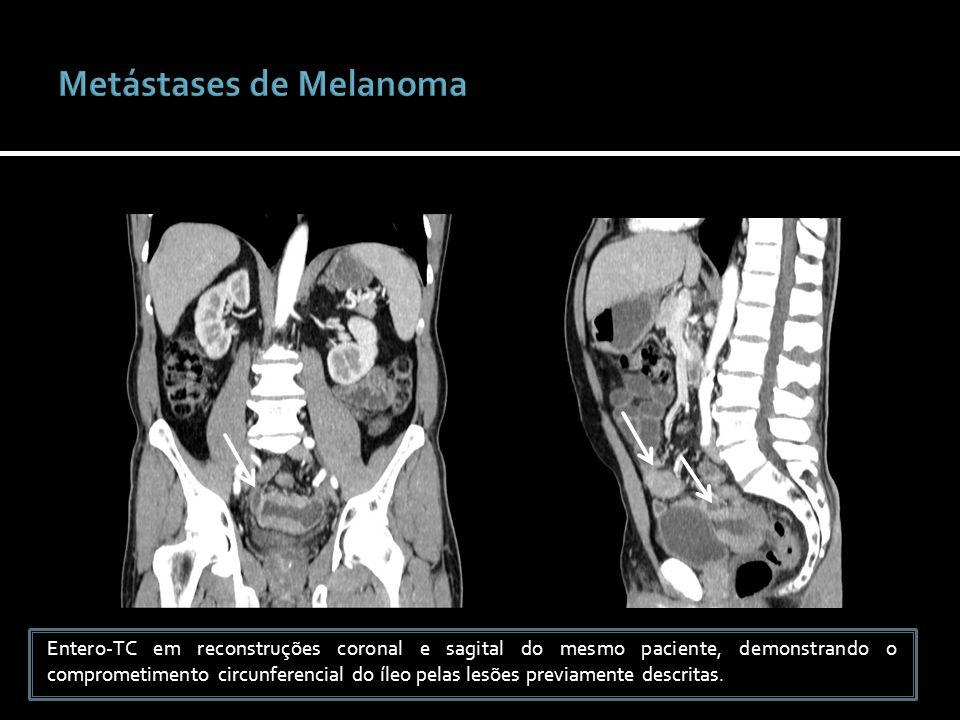 Entero-TC em reconstruções coronal e sagital do mesmo paciente, demonstrando o comprometimento circunferencial do íleo pelas lesões previamente descri