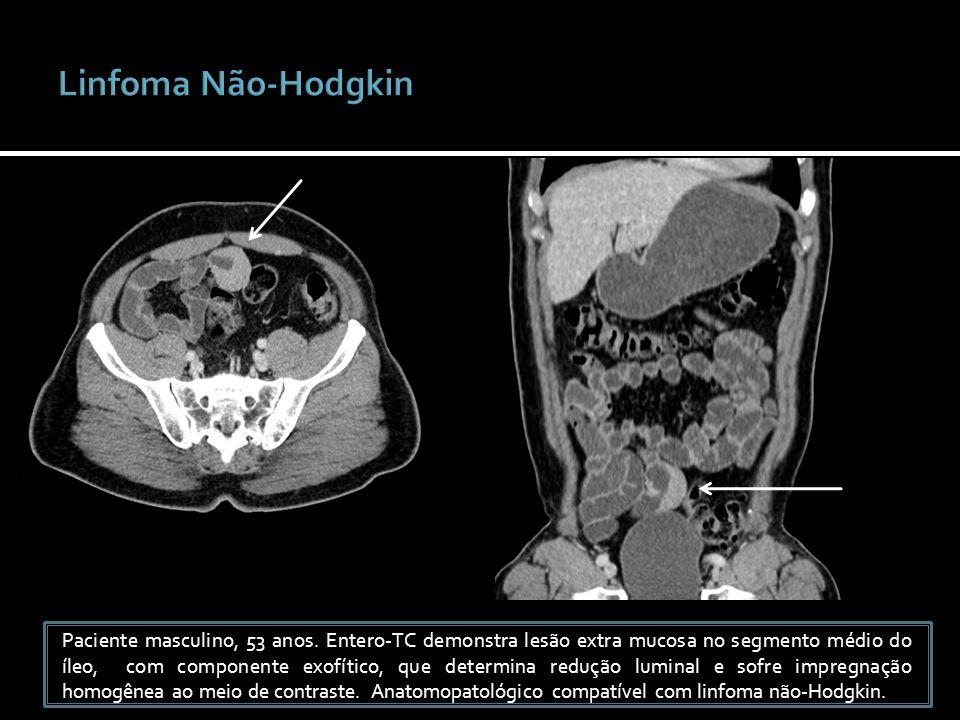 Paciente masculino, 53 anos. Entero-TC demonstra lesão extra mucosa no segmento médio do íleo, com componente exofítico, que determina redução luminal