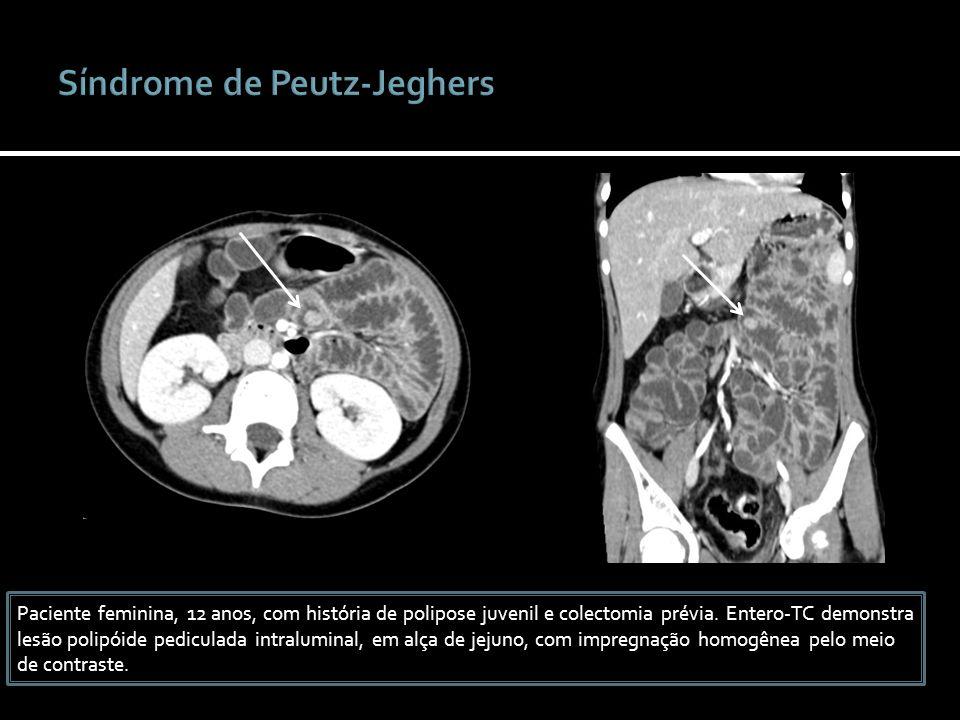 Paciente feminina, 12 anos, com história de polipose juvenil e colectomia prévia. Entero-TC demonstra lesão polipóide pediculada intraluminal, em alça