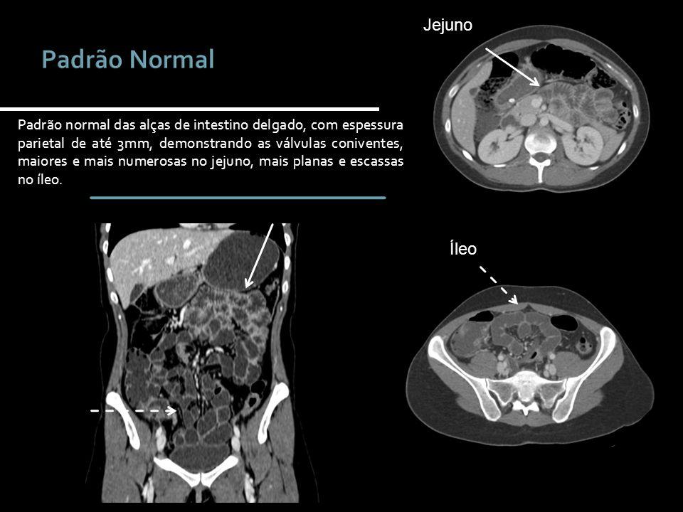 Íleo Jejuno Padrão normal das alças de intestino delgado, com espessura parietal de até 3mm, demonstrando as válvulas coniventes, maiores e mais numer