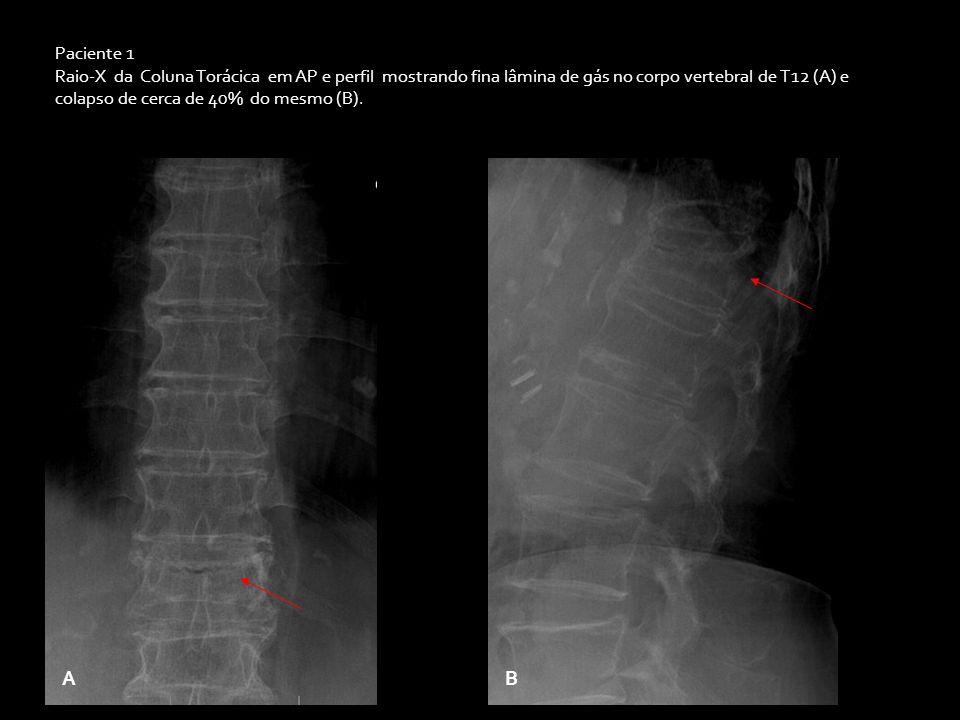 Paciente 1 Raio-X da Coluna Torácica em AP e perfil mostrando fina lâmina de gás no corpo vertebral de T12 (A) e colapso de cerca de 40% do mesmo (B).