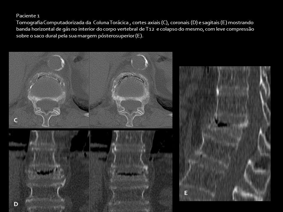 Paciente 2 Tomografia Computadorizada da Coluna Torácica, Scout (A) e cortes coronais (B) e axiais (C) mostrando banda horizontal de gás no interior do corpo vertebral de T12 e colapso do mesmo.