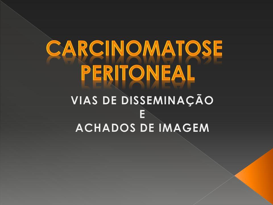 Carcinomatose peritoneal é a disseminação intra- peritoneal de células neoplásicas, sendo considerada a condição maligna mais comum da cavidade peritoneal [1,3].