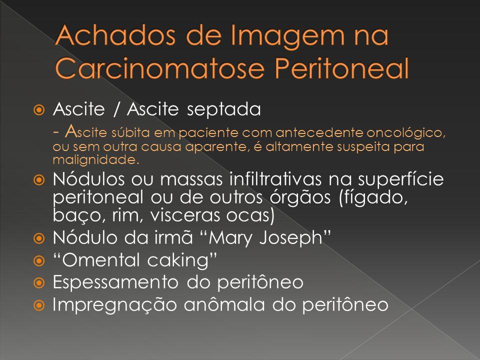Ascite / Ascite septada - A scite súbita em paciente com antecedente oncológico, ou sem outra causa aparente, é altamente suspeita para malignidade. N