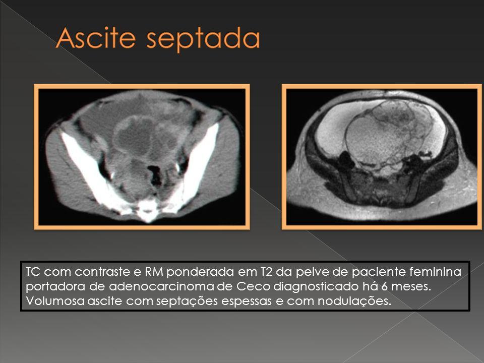 TC com contraste e RM ponderada em T2 da pelve de paciente feminina portadora de adenocarcinoma de Ceco diagnosticado há 6 meses. Volumosa ascite com