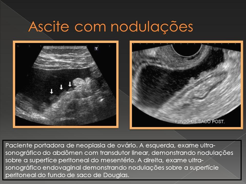 Paciente portadora de neoplasia de ovário. A esquerda, exame ultra- sonográfico do abdômen com transdutor linear, demonstrando nodulações sobre a supe