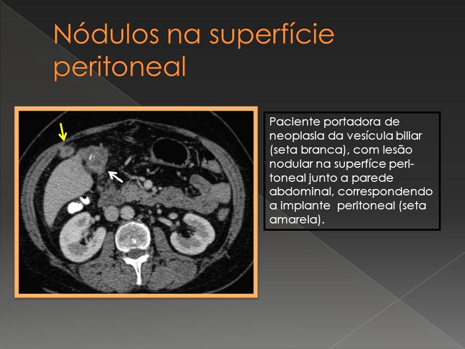 Paciente portadora de neoplasia da vesícula biliar (seta branca), com lesão nodular na superfíce peri- toneal junto a parede abdominal, correspondendo