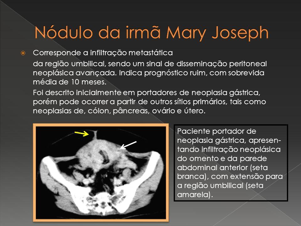 Corresponde a infiltração metastática da região umbilical, sendo um sinal de disseminação peritoneal neoplásica avançada. Indica prognóstico ruim, com