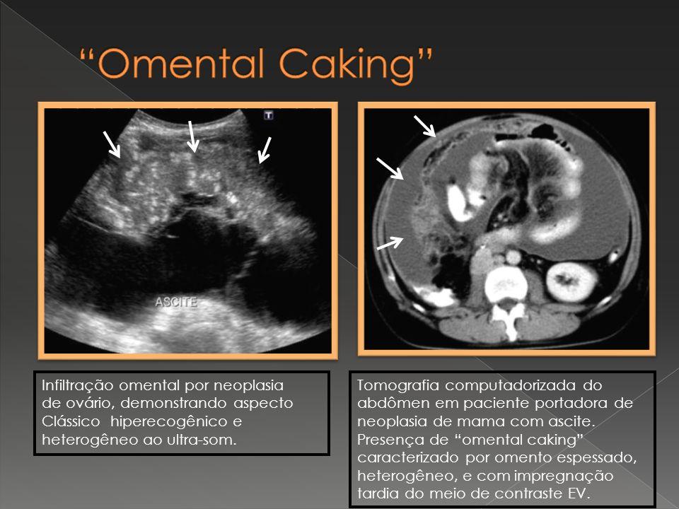 Infiltração omental por neoplasia de ovário, demonstrando aspecto Clássico hiperecogênico e heterogêneo ao ultra-som. Tomografia computadorizada do ab