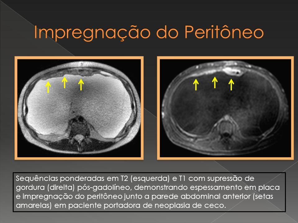 Sequências ponderadas em T2 (esquerda) e T1 com supressão de gordura (direita) pós-gadolíneo, demonstrando espessamento em placa e impregnação do peri
