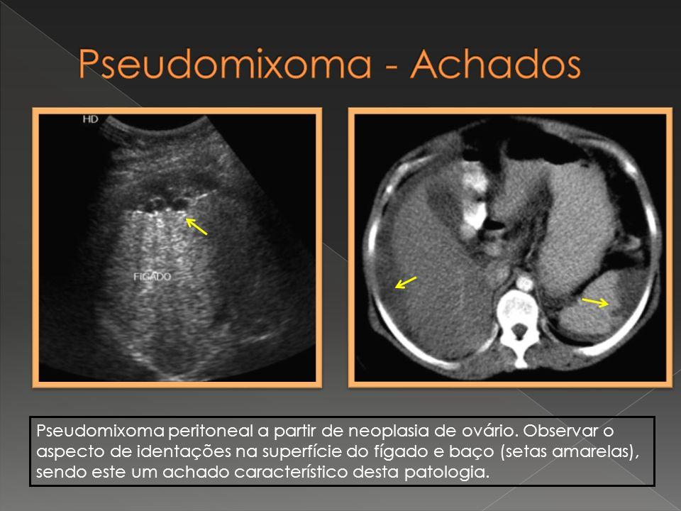 Pseudomixoma peritoneal a partir de neoplasia de ovário. Observar o aspecto de identações na superfície do fígado e baço (setas amarelas), sendo este