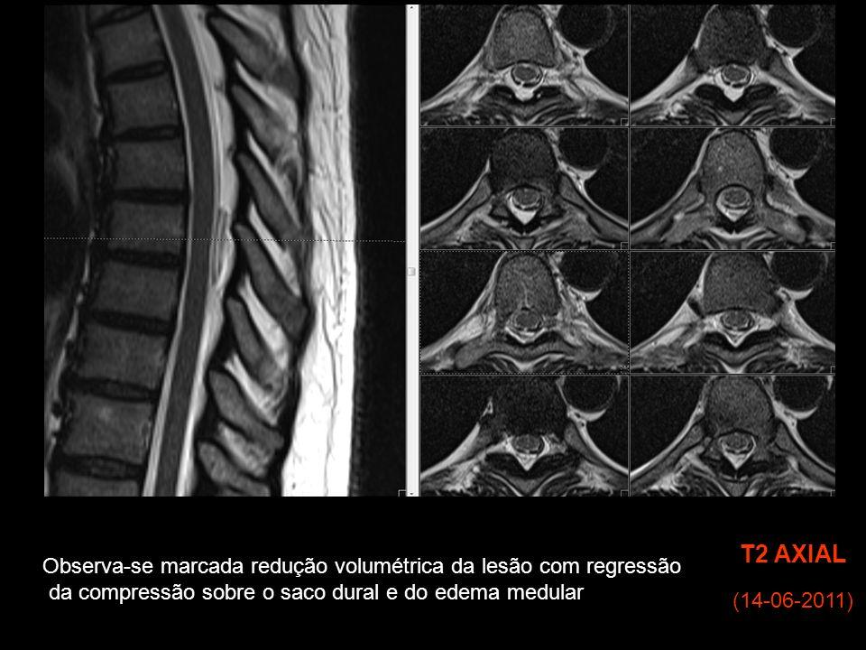 (14-06-2011) T2 AXIAL Observa-se marcada redução volumétrica da lesão com regressão da compressão sobre o saco dural e do edema medular