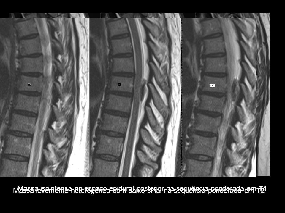Achados Radiológicos TC: hiperdensidade no interior do canal vertebral RM –T1 Hipo / Iso / Hiperintensa (dependendo do tempo decorrido) –T2 Coleção heterogênea Hiposinal (agudo) Hipersinal (subagudo) –T1+Gadolínio Realce periférico da coleção –Fat-Sat ajuda excluir lipomatose Massa isointensa no espaço epidural posterior na sequência ponderada em T1 Massa levemente heterogênea com baixo sinal na sequência ponderada em T2