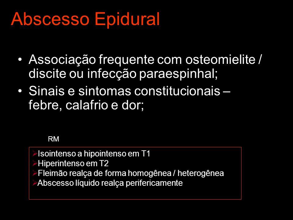 Abscesso Epidural Associação frequente com osteomielite / discite ou infecção paraespinhal; Sinais e sintomas constitucionais – febre, calafrio e dor; Isointenso a hipointenso em T1 Hiperintenso em T2 Fleimão realça de forma homogênea / heterogênea Abscesso líquido realça perifericamente RM