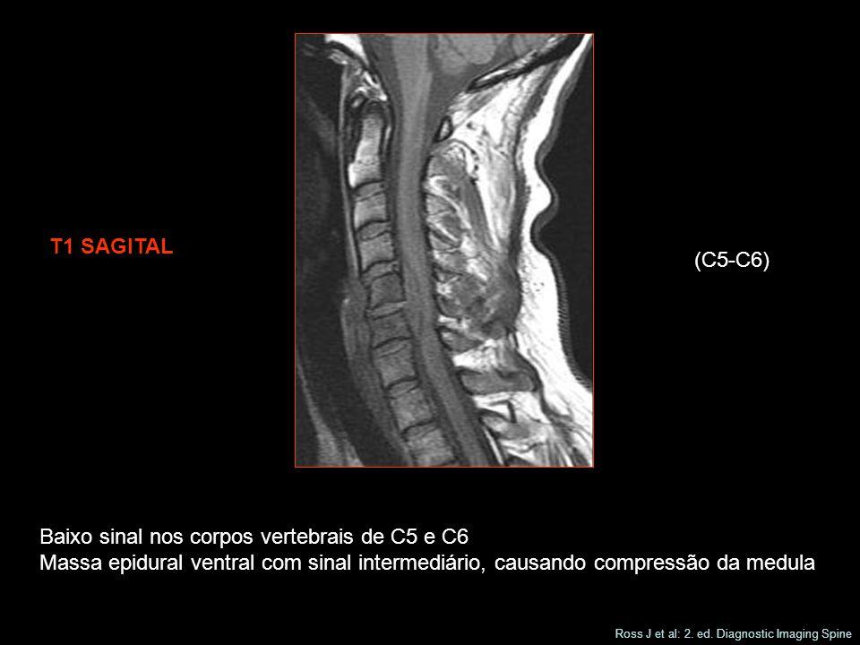 T1 SAGITAL (C5-C6) Baixo sinal nos corpos vertebrais de C5 e C6 Massa epidural ventral com sinal intermediário, causando compressão da medula Ross J et al: 2.