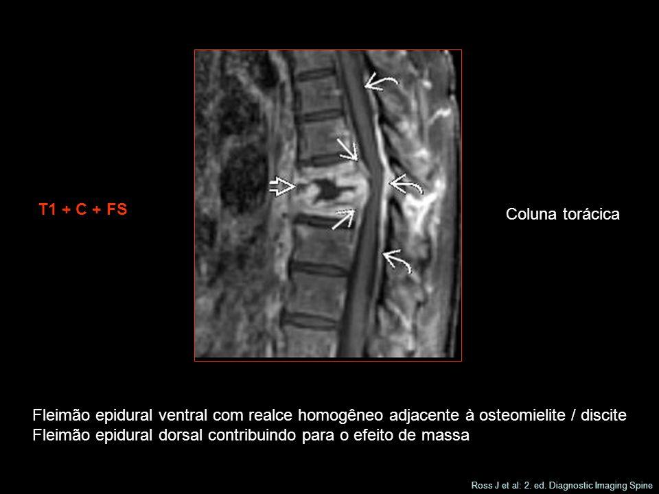 T1 + C + FS Coluna torácica Fleimão epidural ventral com realce homogêneo adjacente à osteomielite / discite Fleimão epidural dorsal contribuindo para o efeito de massa Ross J et al: 2.