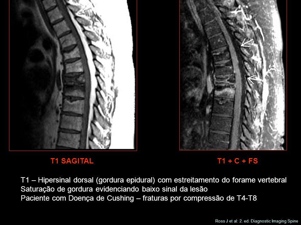 T1 SAGITALT1 + C + FS T1 – Hipersinal dorsal (gordura epidural) com estreitamento do forame vertebral Saturação de gordura evidenciando baixo sinal da lesão Paciente com Doença de Cushing – fraturas por compressão de T4-T8 Ross J et al: 2.