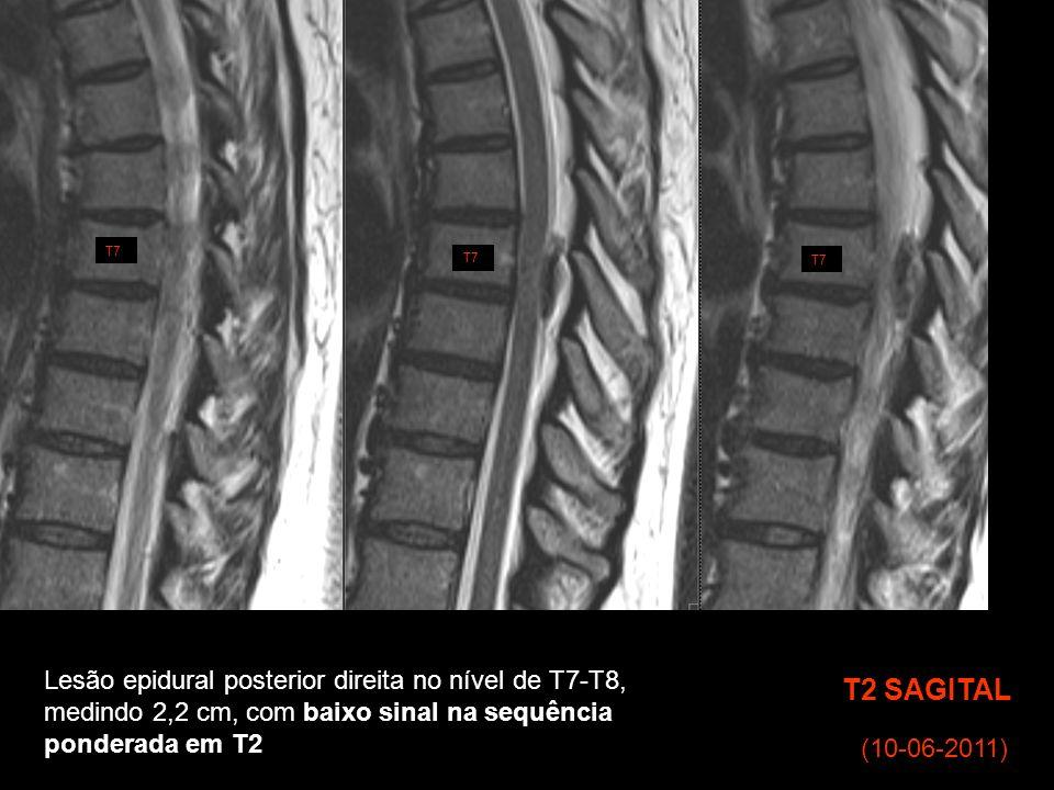 T2 SAGITAL T7 (10-06-2011) Lesão epidural posterior direita no nível de T7-T8, medindo 2,2 cm, com baixo sinal na sequência ponderada em T2