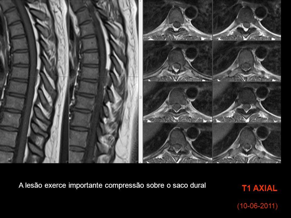 (10-06-2011) T1 AXIAL A lesão exerce importante compressão sobre o saco dural