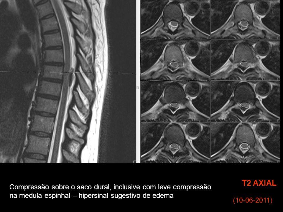 (10-06-2011) T2 AXIAL Compressão sobre o saco dural, inclusive com leve compressão na medula espinhal – hipersinal sugestivo de edema
