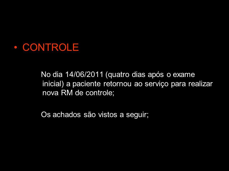 CONTROLE No dia 14/06/2011 (quatro dias após o exame inicial) a paciente retornou ao serviço para realizar nova RM de controle; Os achados são vistos a seguir;