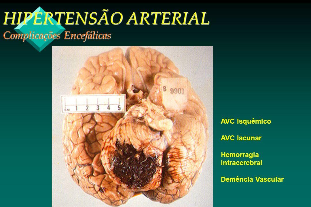 HIPERTENSÃO ARTERIAL Complicações Encefálicas AVC Isquêmico AVC lacunar Hemorragia intracerebral Demência Vascular