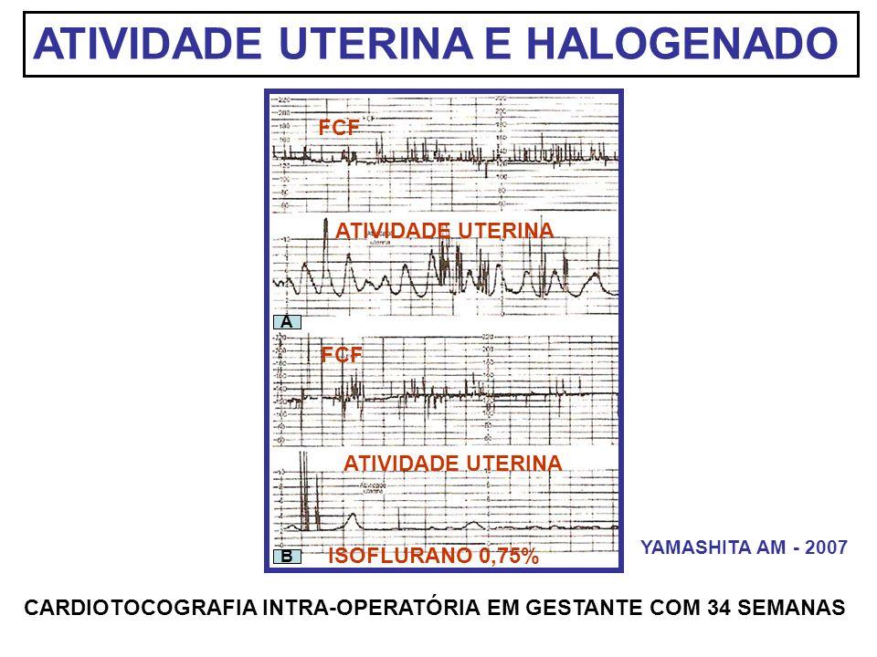 ATIVIDADE UTERINA E HALOGENADO FCF ATIVIDADE UTERINA B A ISOFLURANO 0,75% CARDIOTOCOGRAFIA INTRA-OPERATÓRIA EM GESTANTE COM 34 SEMANAS YAMASHITA AM -