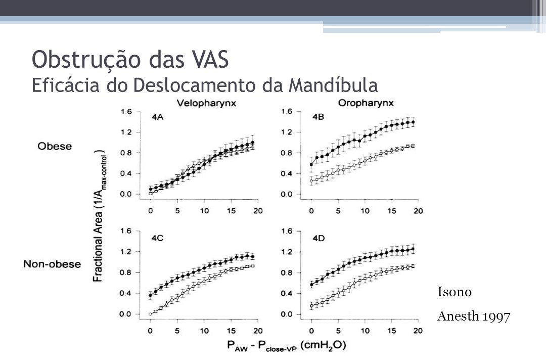Obstrução das VAS Eficácia do Deslocamento da Mandíbula Isono Anesth 1997