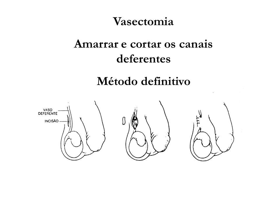 Vasectomia Amarrar e cortar os canais deferentes Método definitivo