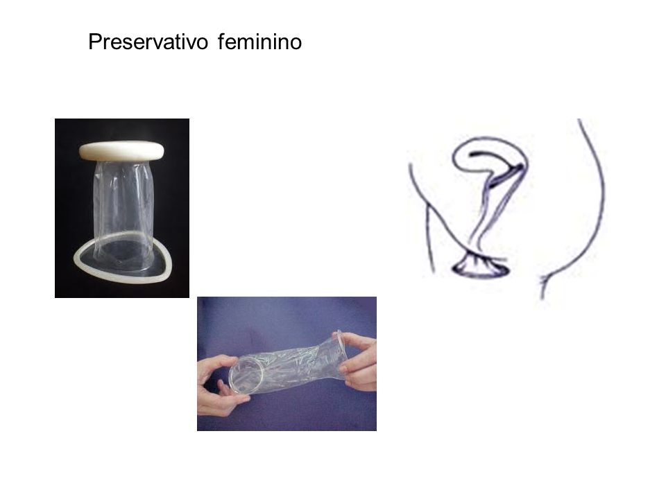 Preservativo feminino