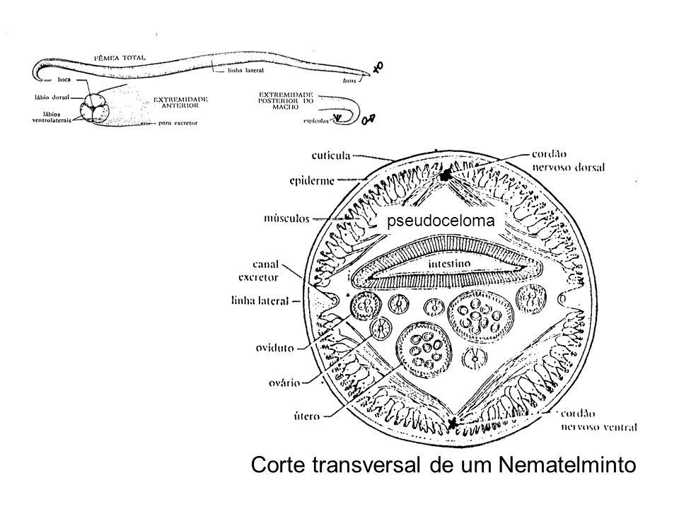 Corte transversal de um Nematelminto pseudoceloma