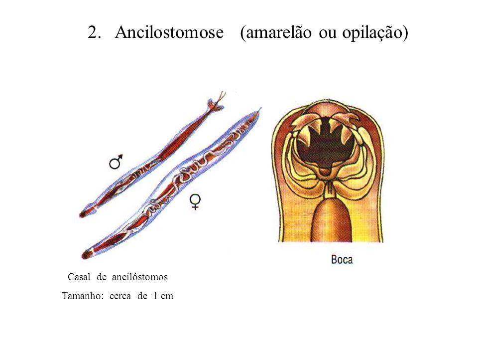 2. Ancilostomose (amarelão ou opilação) Casal de ancilóstomos Tamanho: cerca de 1 cm