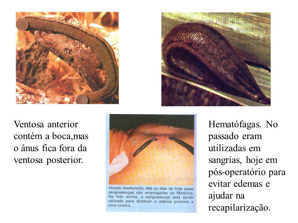 Ventosa anterior contém a boca,mas o ânus fica fora da ventosa posterior. Hematófagas. No passado eram utilizadas em sangrias, hoje em pós-operatório