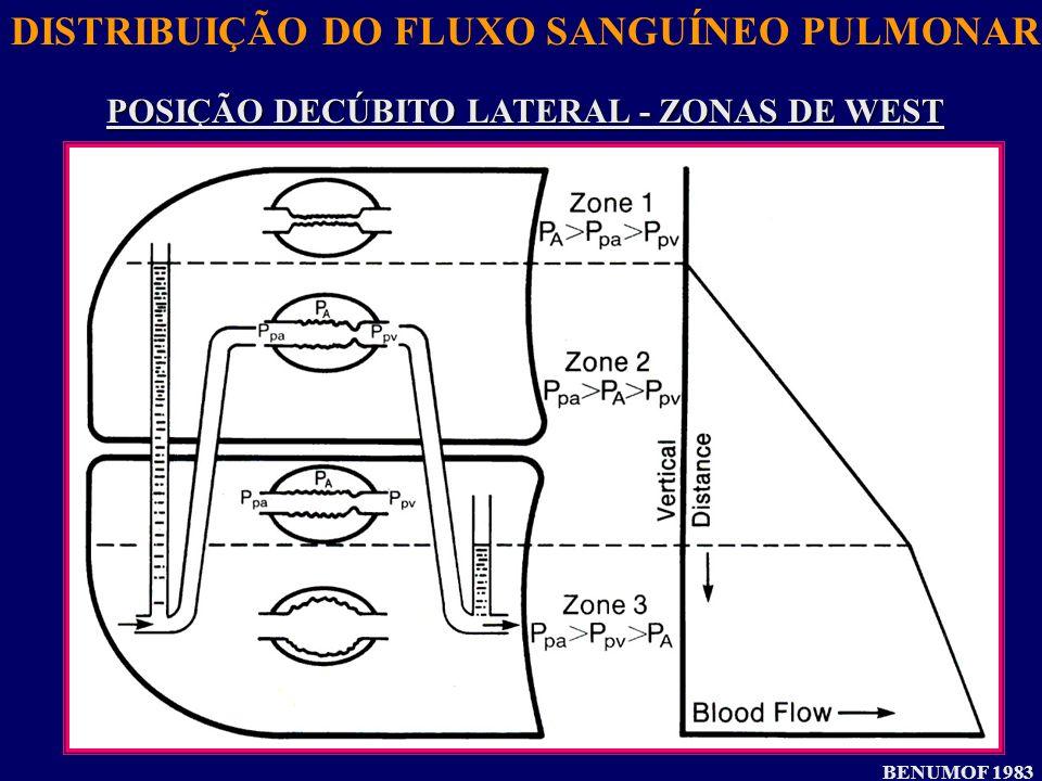 DISTRIBUIÇÃO DO FLUXO SANGUÍNEO PULMONAR POSIÇÃO DECÚBITO LATERAL - ZONAS DE WEST BENUMOF 1983