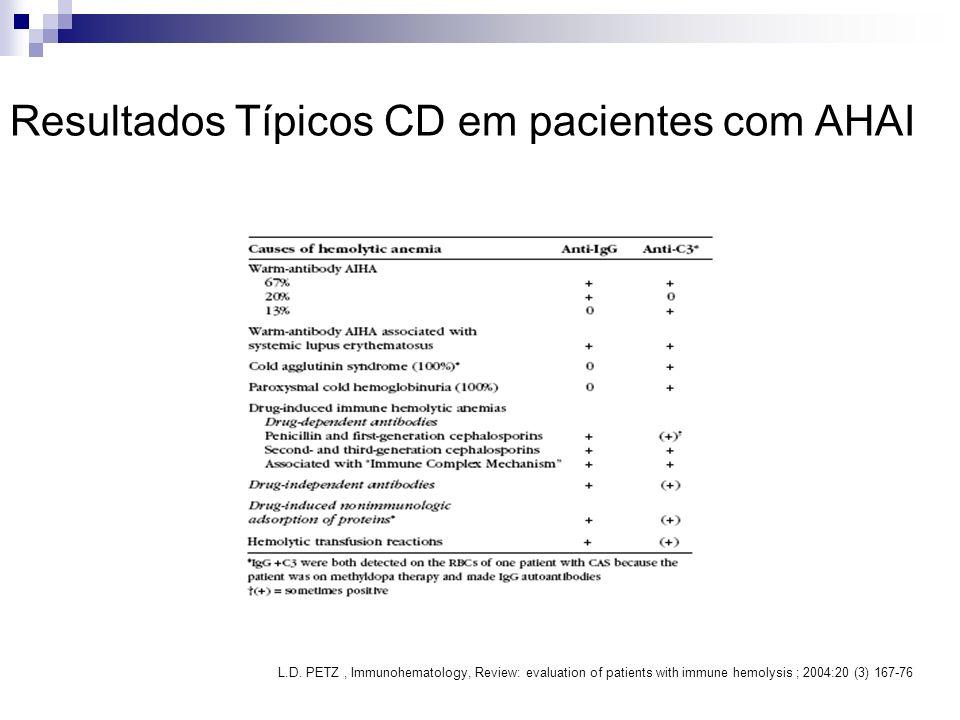 Resultados Típicos CD em pacientes com AHAI L.D. PETZ, Immunohematology, Review: evaluation of patients with immune hemolysis ; 2004:20 (3) 167-76