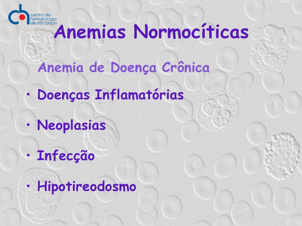 Anemias Normocíticas Anemia de Doença Crônica Doenças Inflamatórias Neoplasias Infecção Hipotireodosmo
