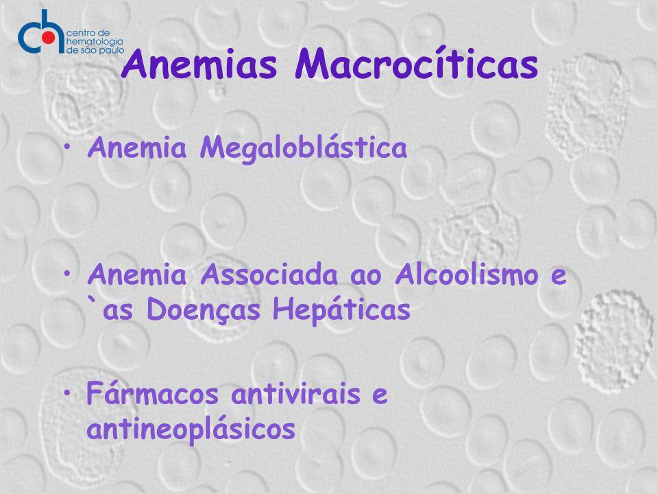 Anemias Macrocíticas Anemia Megaloblástica Anemia Associada ao Alcoolismo e `as Doenças Hepáticas Fármacos antivirais e antineoplásicos