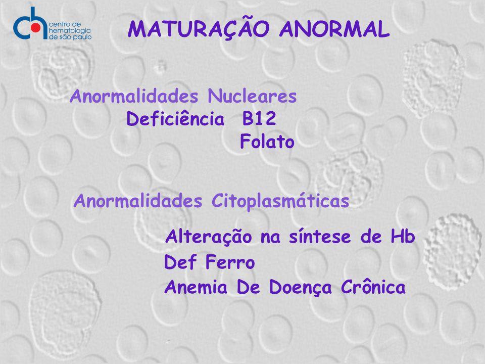 MATURAÇÃO ANORMAL Alteração na síntese de Hb Def Ferro Anemia De Doença Crônica Anormalidades Nucleares Deficiência B12 Folato Anormalidades Citoplasm