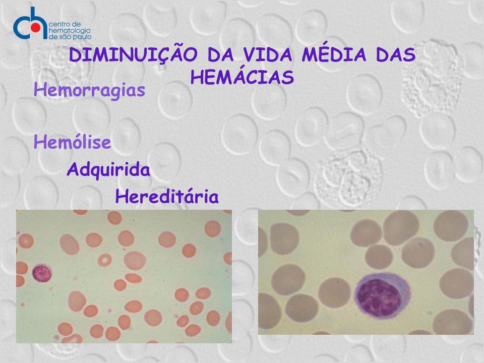 Hemólise Adquirida Hereditária DIMINUIÇÃO DA VIDA MÉDIA DAS HEMÁCIAS Hemorragias