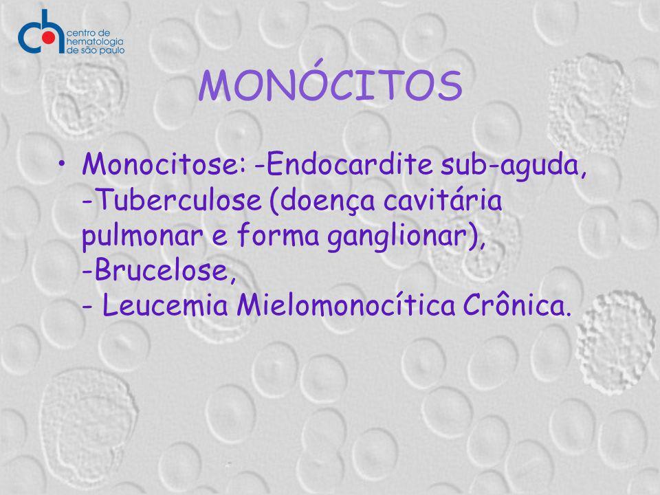 MONÓCITOS Monocitose: -Endocardite sub-aguda, -Tuberculose (doença cavitária pulmonar e forma ganglionar), -Brucelose, - Leucemia Mielomonocítica Crôn