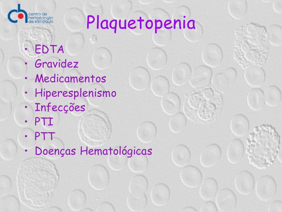 Plaquetopenia EDTA Gravidez Medicamentos Hiperesplenismo Infecções PTI PTT Doenças Hematológicas
