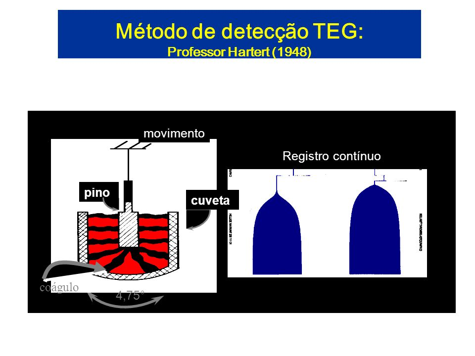 Método de detecção TEG: Professor Hartert (1948) pino cuveta movimento Registro contínuo coágulo 4,75°