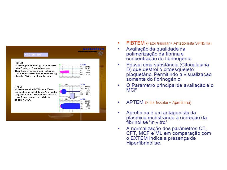 FIBTEM (FIBTEM (Fator tissular + Antagonista GPIIb/IIIa) Avaliação da qualidade da polimerização da fibrina e concentração do fibrinogênioAvaliação da
