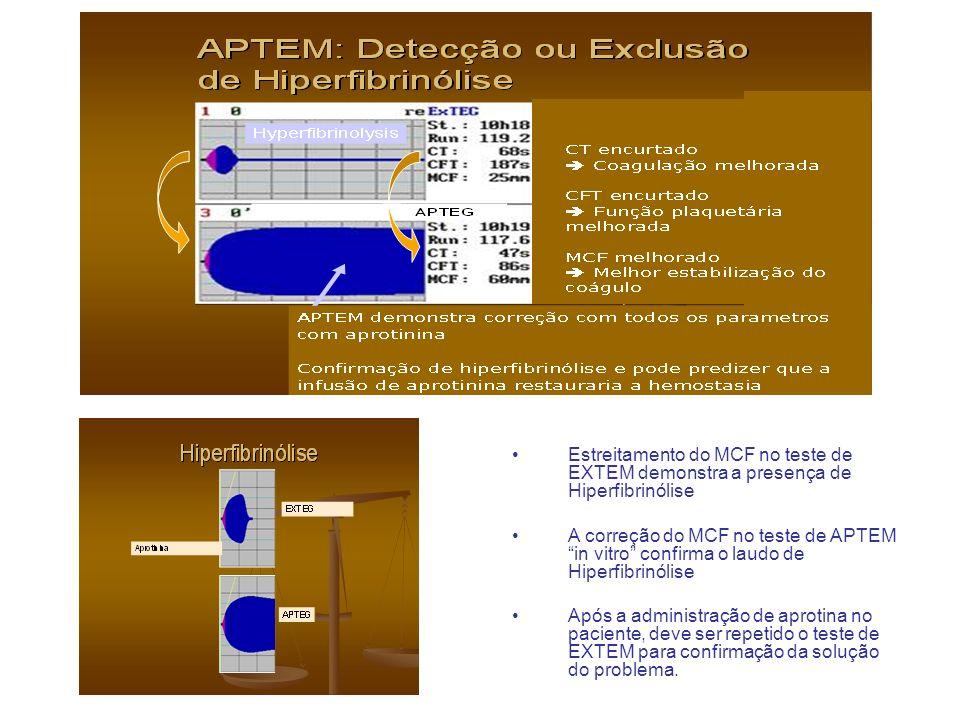 Estreitamento do MCF no teste de EXTEM demonstra a presença de Hiperfibrinólise A correção do MCF no teste de APTEM in vitro confirma o laudo de Hiper