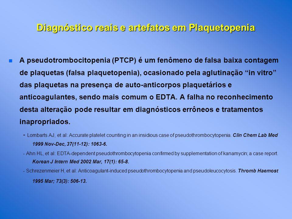 n n A pseudotrombocitopenia (PTCP) é um fenômeno de falsa baixa contagem de plaquetas (falsa plaquetopenia), ocasionado pela aglutinação in vitro das plaquetas na presença de auto-anticorpos plaquetários e anticoagulantes, sendo mais comum o EDTA.
