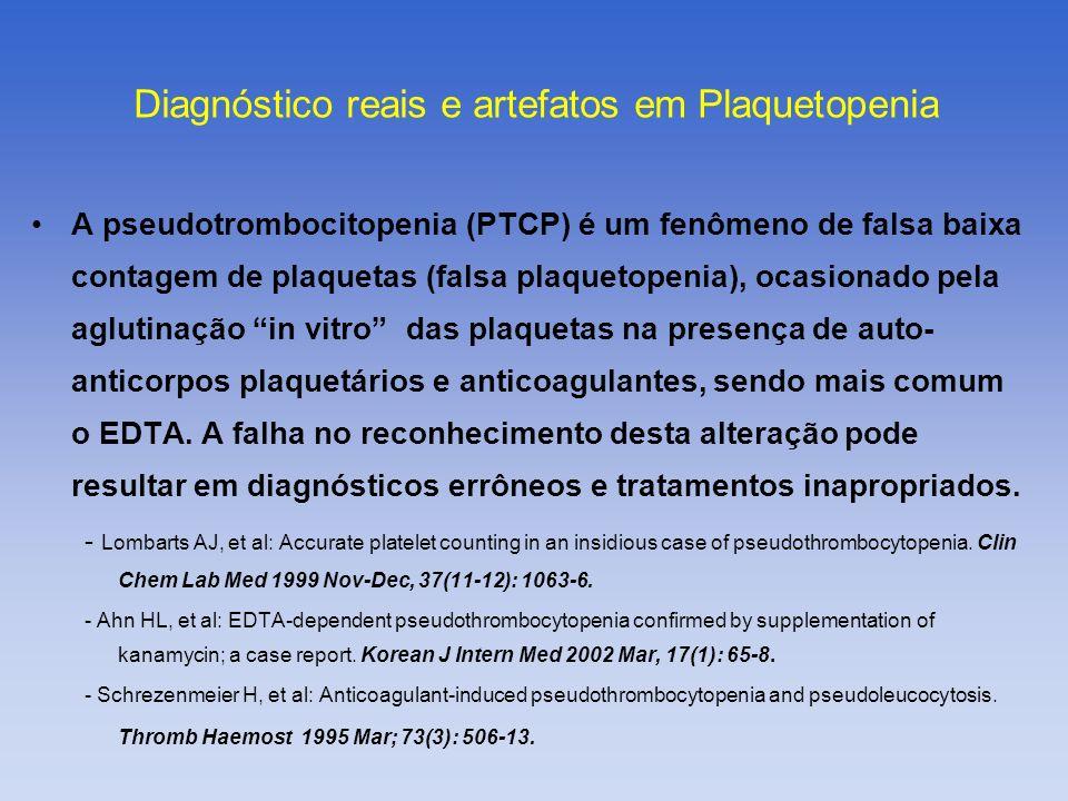 A pseudotrombocitopenia (PTCP) é um fenômeno de falsa baixa contagem de plaquetas (falsa plaquetopenia), ocasionado pela aglutinação in vitro das plaq