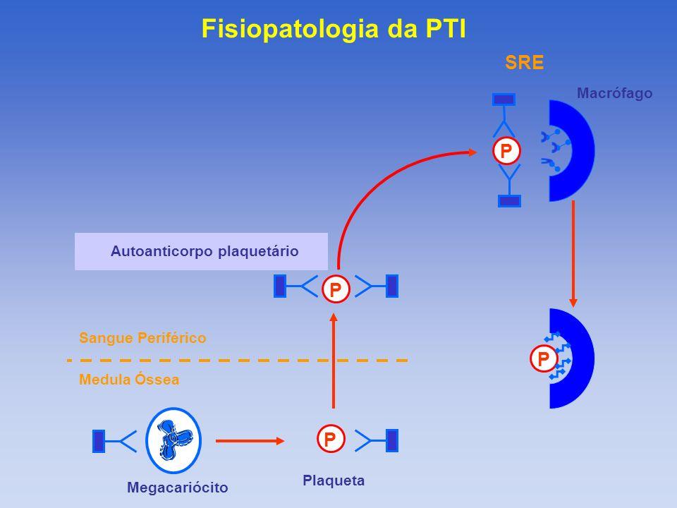 P P P P Medula Óssea Sangue Periférico Megacariócito Plaqueta SRE Autoanticorpo plaquetário Macrófago Fisiopatologia da PTI