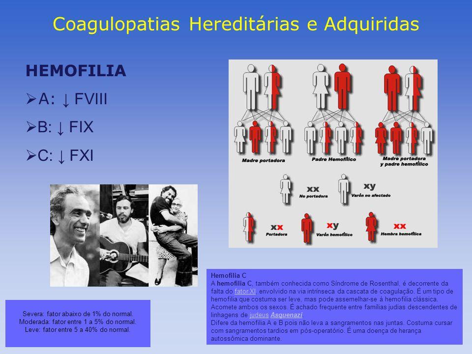 Coagulopatias Hereditárias e Adquiridas HEMOFILIA A: FVIII B: FIX C: FXI Severa: fator abaixo de 1% do normal. Moderada: fator entre 1 a 5% do normal.